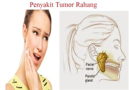 Pengobatan Penyakit Tumor Rahang